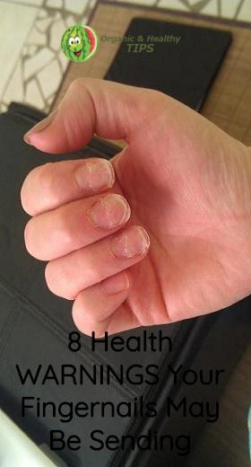8 Health WARNINGS Your Fingernails May Be Sending - Organic Healthy Tips